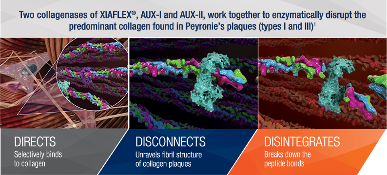 Two collagenases of XIAFLEX®, Aux I and Aux II, work together to enzymatically disrupt the predominant collagen found in Peyronie's plaques types 1 and 3 (1)