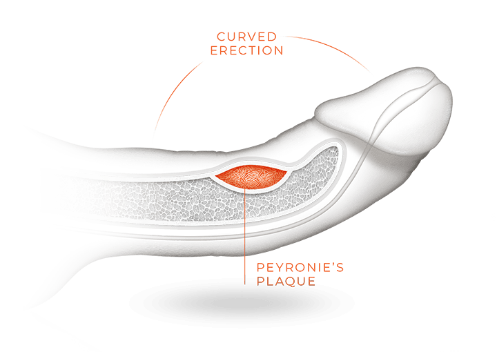 A curved erection bent 30 degrees with a bump of scar tissue under the skin of a penis