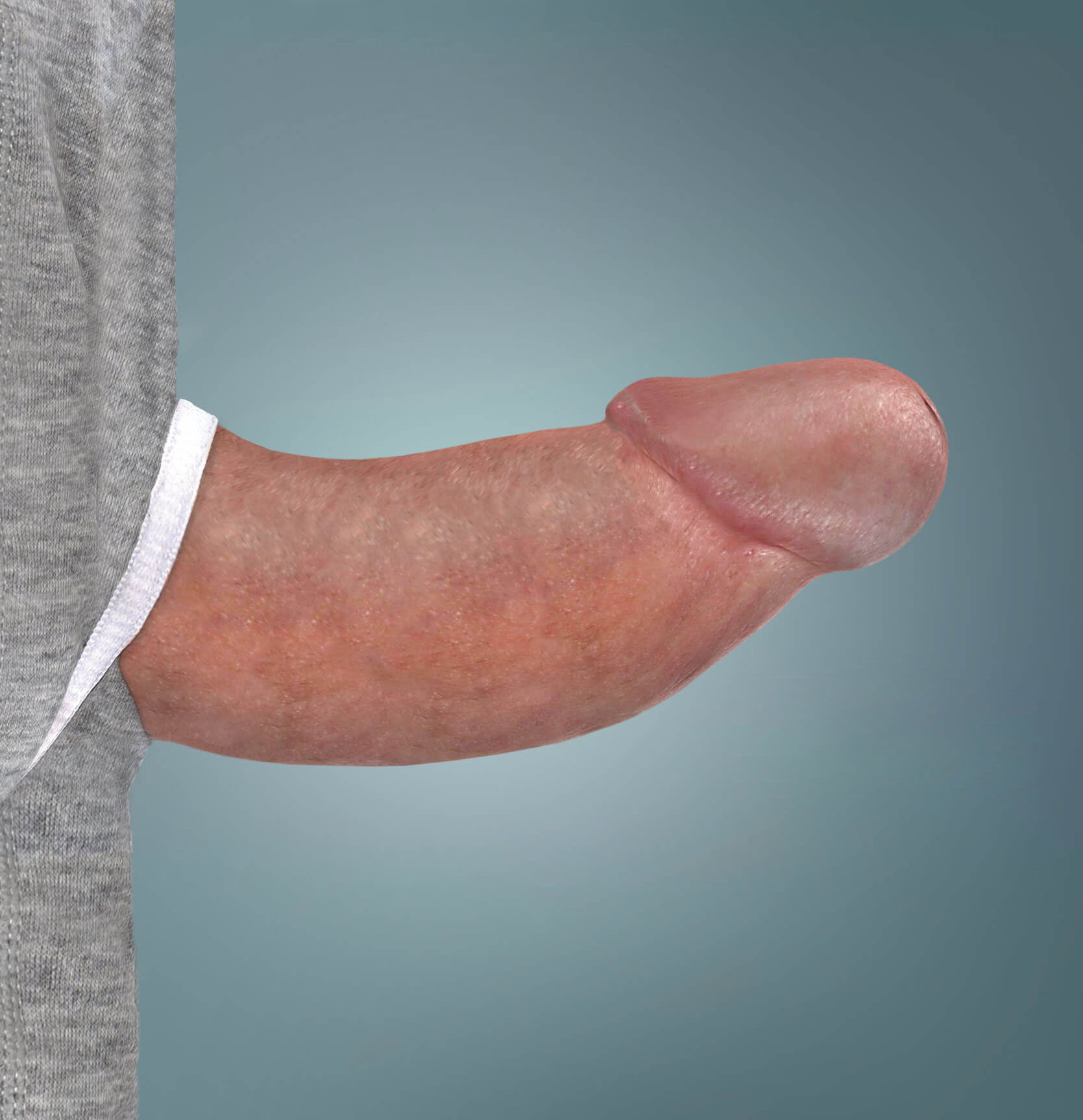 XIAFLEX® before and after photo of a patient's penis after treatment