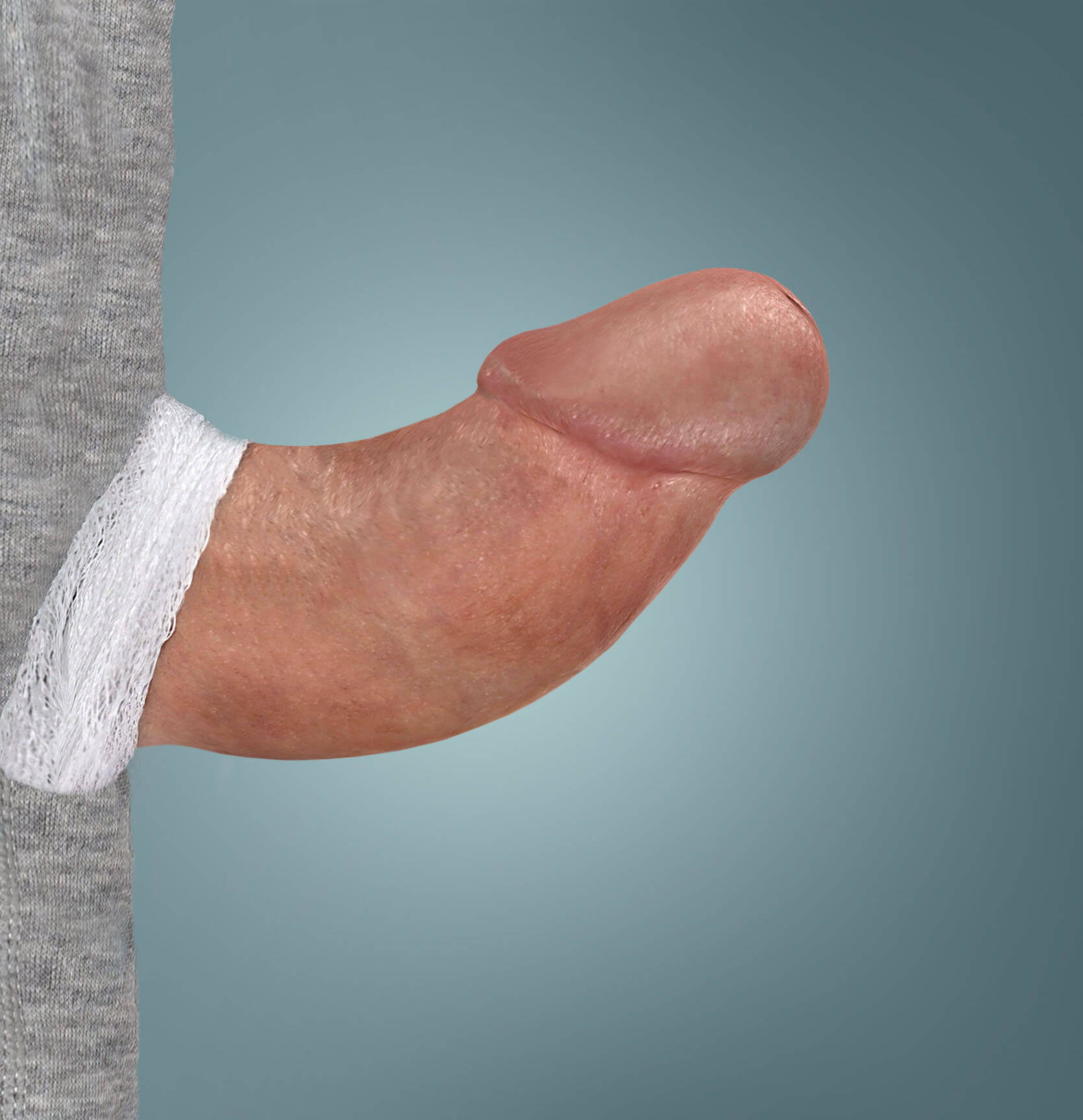 XIAFLEX® before and after photo of a patient's penis, showing an erectile curvature before treatment