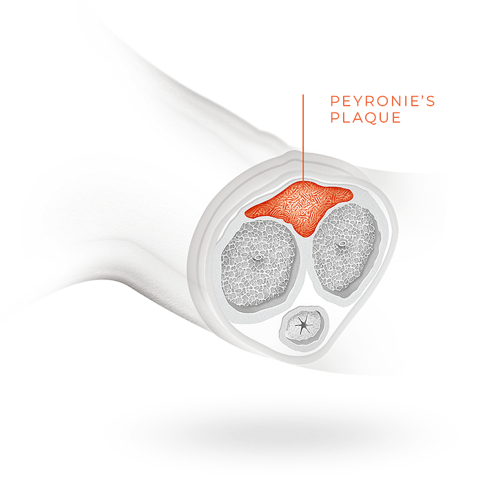 Cross-section of Peyronie's plaque inside the penis