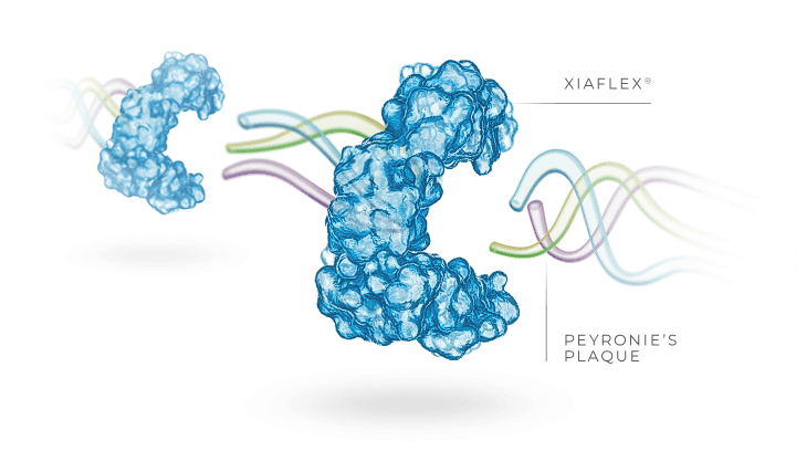 XIAFLEX® breaks down bonds that hold Peyronie's plaque together