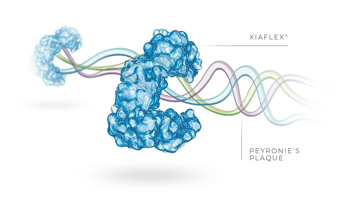 XIAFLEX® loosens complex fibers that make up Peyronie's plaque